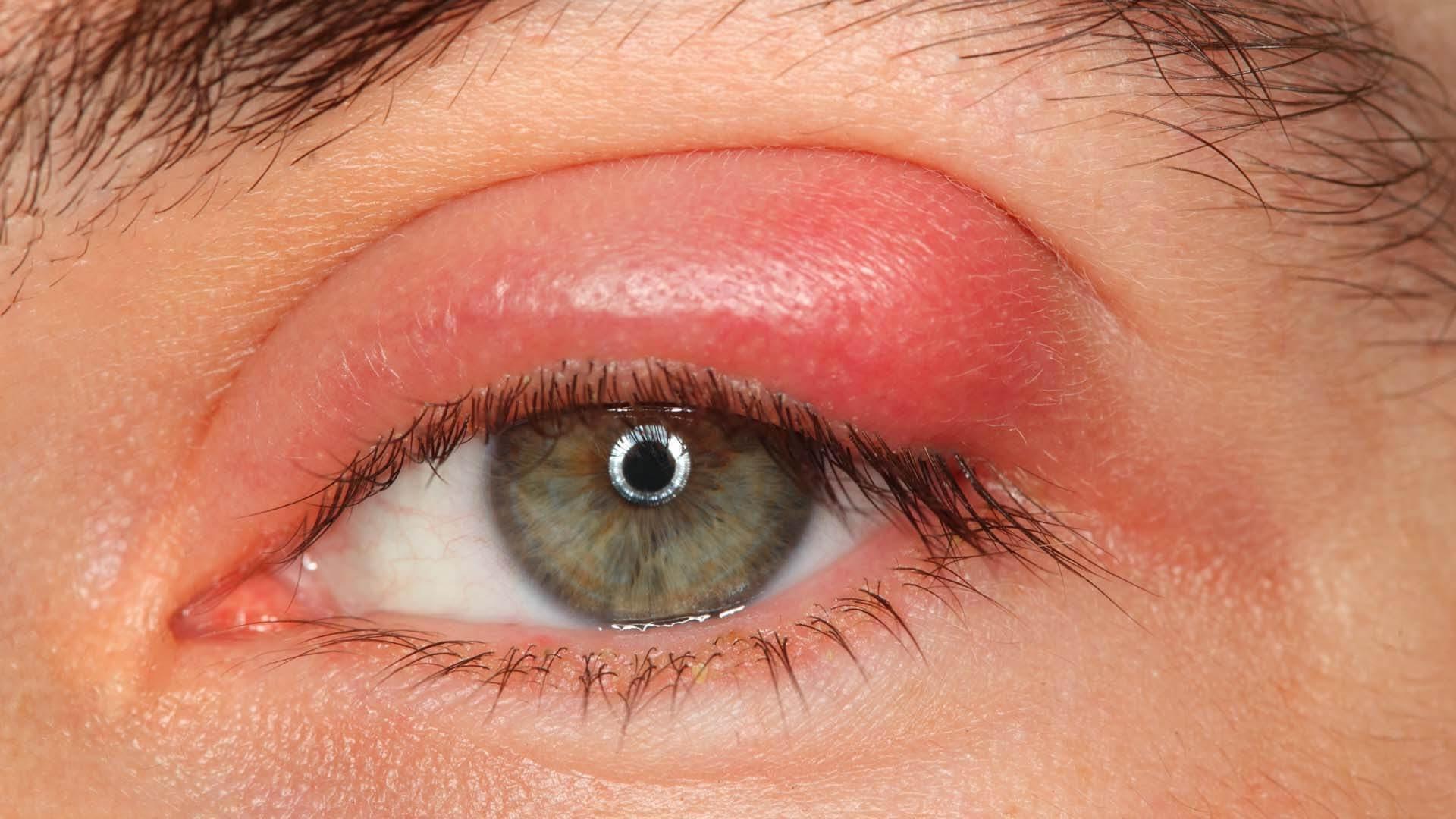 Arpacık ve Göz Enfeksiyonda Kolloidal Gümüş Suyu